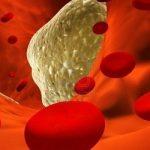 5 эффективных народных средств при атеросклерозе