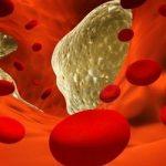 Врачи определили лучший способ снизить холестерин