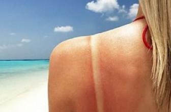 3 натуральных средства при солнечных ожогах