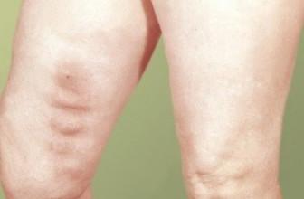 Профилактика тромбофлебита: как укрепить стенки сосудов и снизить риск образования тромбов