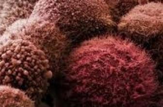 Обнаружены 23гена, отвечающие за метастазы рака