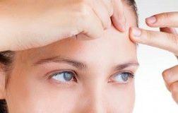 Уход за кожей с угрями: 3 рецепта